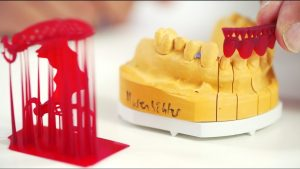 3D Druck Dentallabor